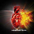 Heart Attack. Abstract Medical And Health Care Backgrounds